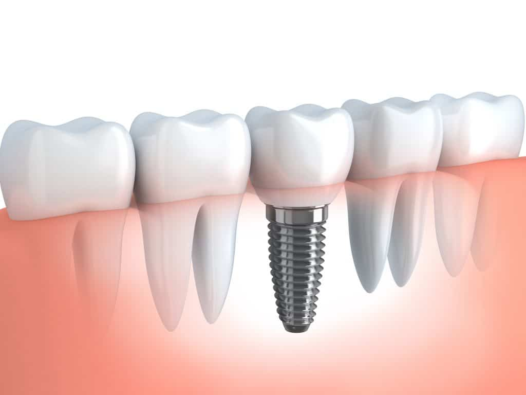 how a dental implant is fitted